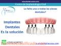 Implantes dentales desde 300 dolares cada uno